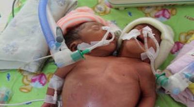 Bayi kembar siam di bagian bahu hingga pusar (foto: Banda Haruddin/ Okezone)