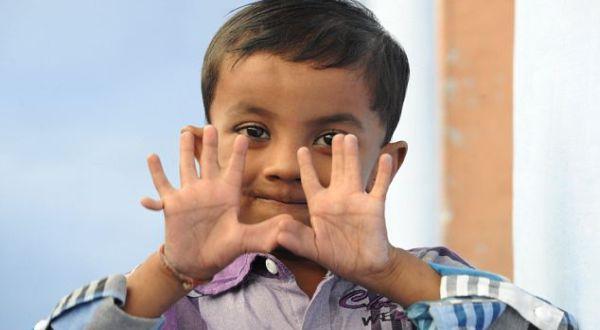 Arpan yang memiliki 25 jari (Foto: the Daily Mail)