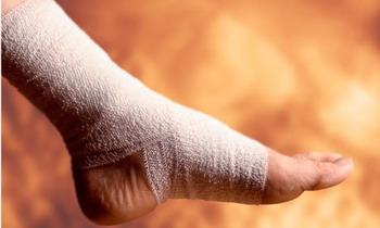 Keseleo pada kaki sering dialami saat berolahraga
