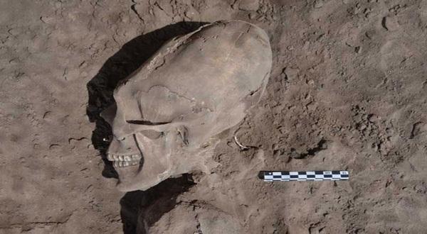 Tengkorak Kepala Lonjong Berusia 1.000 Tahun Ditemukan