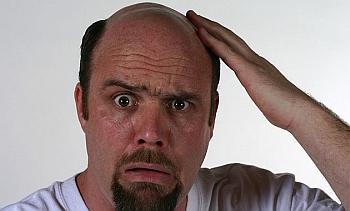 Botak di Usia Muda, Tanda Kanker Prostat
