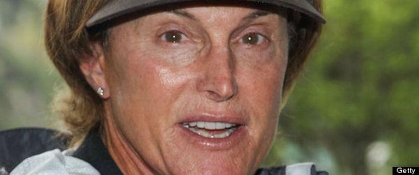 Ayah Kim Kardashian Operasi Hilangkan Jakun