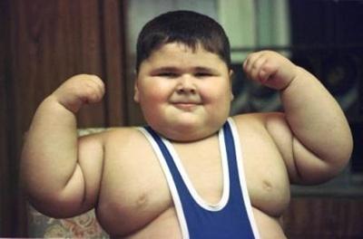 """""""Anak Obesitas Bukan Lucu tapi Penyakit"""""""