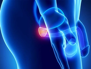 Trik Ketahui Anda Alami Pembesaran Prostat