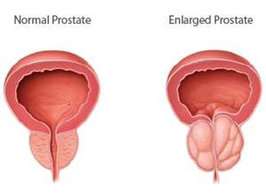 Nih, Cara Obati Pembesaran Prostat Anda