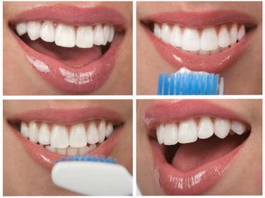 Cara Hilangkan Warna Kuning pada Gigi