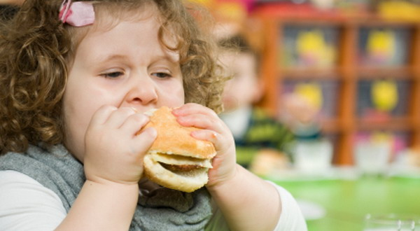 Balita Obesitas karena Doyan Makan