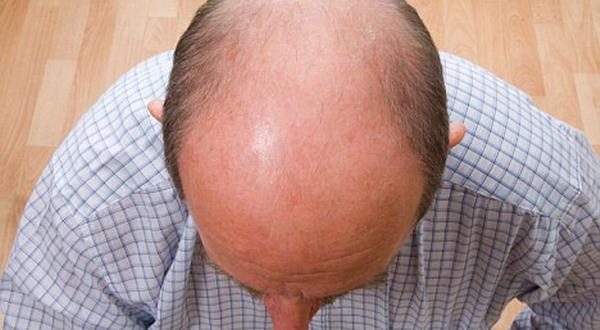 Rambut Mulai Rontok, Segera Redakan Stres Anda