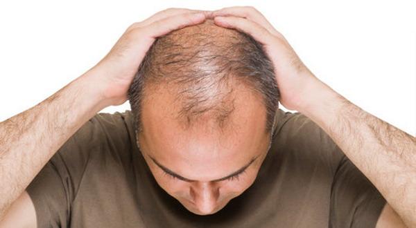 Pria Botak Usia 40-an Berisiko Kanker