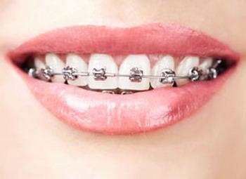 Inovasi Kawat Gigi untuk Lansia