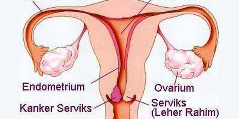 https: img.okeinfo.net content 2015 01 09 487 1090157 toilet tak tularkan penyakit kanker serviks NIRxFI55Uk.jpg