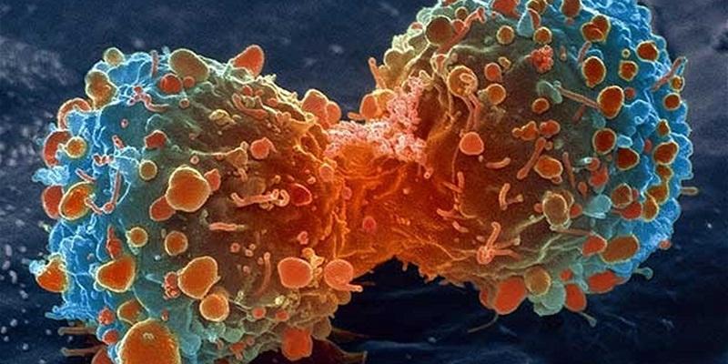 https: img.okeinfo.net content 2015 03 11 481 1117177 kanker-prostat-dan-kanker-payudara-saling-berkaitan-ewnuIf22Zz.jpg