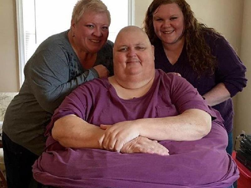 https img.okeinfo.net content 2017 02 14 481 1617701 alamak pria ini punya tumor seberat 57 kg di perutnya B8kYs5QywA.jpg