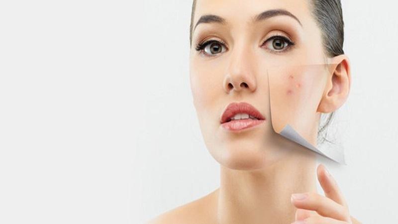 pakar kecantikan dan dermatologist sangat tidak menganjurkan untuk tidur tanpa membersihkan makeup