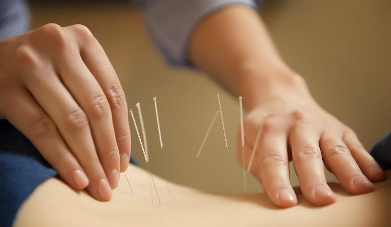 Ilustrasi akupuntur