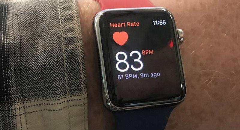 https: img.okeinfo.net content 2017 05 15 56 1691621 apple-watch-bisa-deteksi-stroke-secara-akurat-yRGQC4rwjC.jpg