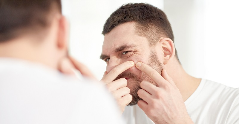 Kebiasaan buruk ini hanya meninggalkan bekas luka yang akan menempel cukup lama di wajah.