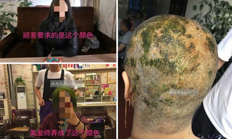 https img.okeinfo.net content 2017 09 13 194 1774834 tragis niat mewarnai rambut wanita asal china ini alami kebotakan hingga luka bakar di kulit kepala RjPlYXYEAT.jpg