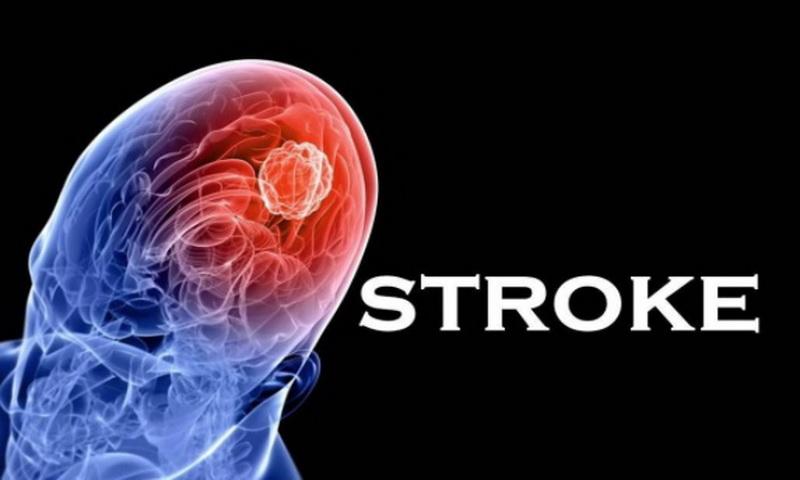 https: img.okeinfo.net content 2017 10 25 481 1802291 jelang-hari-stroke-sedunia-kenali-apa-itu-penyakit-stroke-gejala-hingga-resikonya-W2N063Xztv.jpg