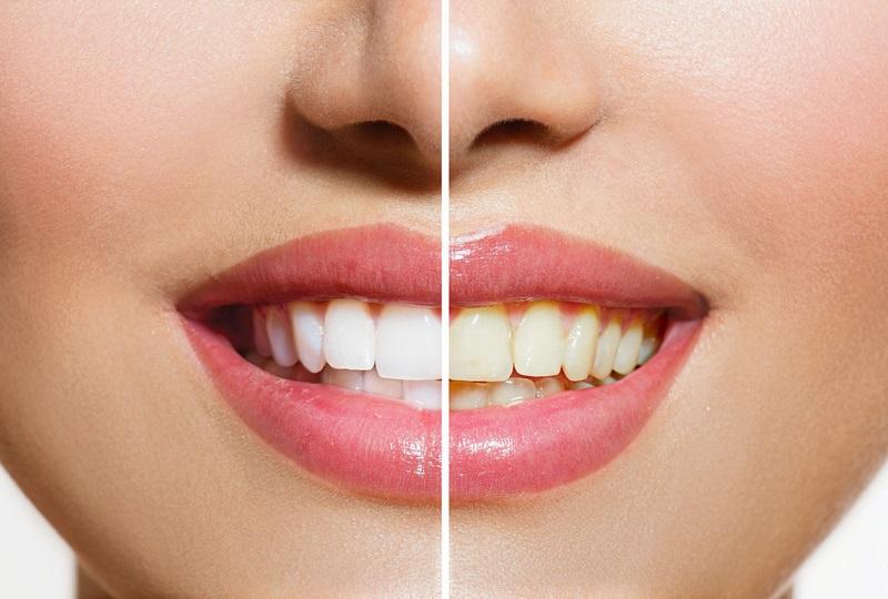 Putihkan Gigi Dalam Waktu 1 Jam Hanya Butuh Baking Soda Dan
