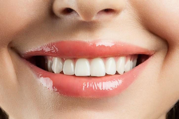 Yuk Intip Tips Memutihkan Gigi sista secara singkat dan Alami !
