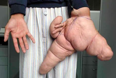 https: img.okeinfo.net content 2018 04 15 194 1886831 5-manusia-dengan-ukuran-anggota-tubuh-langka-salah-satunya-jari-terbesar-di-dunia-oFjvhnkVVc.jpg