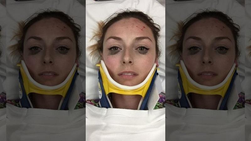 https: img.okeinfo.net content 2018 04 26 194 1891791 eyeliner-tetap-sempurna-usai-kecelakaan-ulasan-perempuan-ini-jadi-viral-NFhO39eWan.jpg