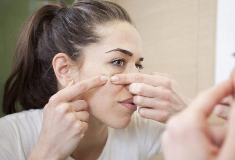 serum bisa menjadi salah satu solusi untuk membersihkan jerawat di wajah.