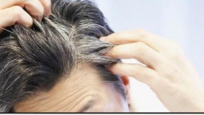 https: img.okeinfo.net content 2018 05 08 56 1896032 penyebab-tumbuhnya-uban-di-rambut-karena-emosi-38OsOEnIOu.jpg