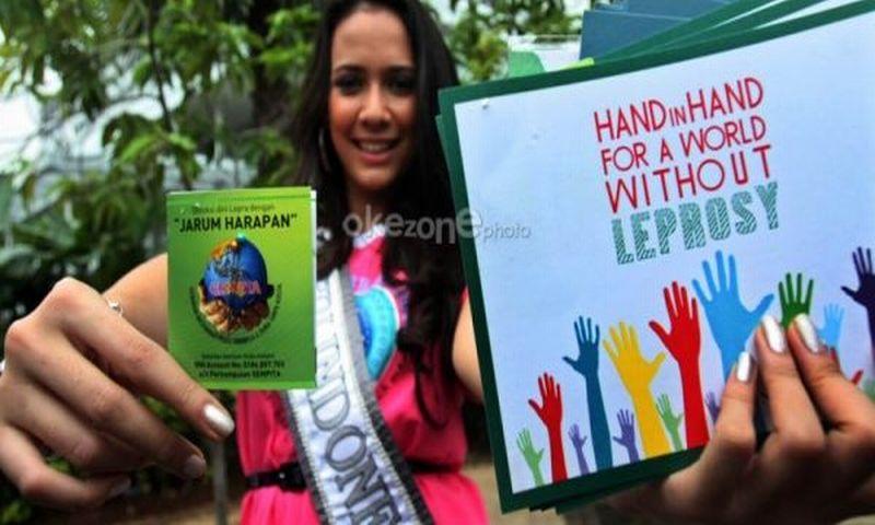 https: img.okeinfo.net content 2018 05 13 481 1897552 indonesia-ranking-3-penderita-kusta-di-dunia-yuk-ketahui-penyebabnya-LJQ1EbL3ZY.jpg