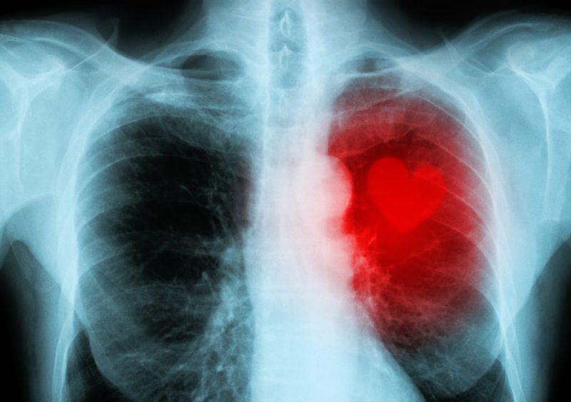 Kondisi ini tidak dapat diabaikan karena dapat mengancam nyawa pasien.