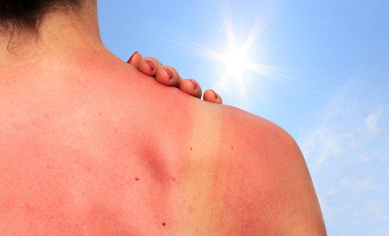 Image result for mencegah kulit terbakar sinar matahari