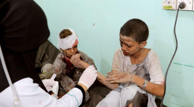 https: img.okeinfo.net content 2018 08 25 18 1941403 pbb-kecam-serangan-koalisi-pimpinan-arab-saudi-yang-tewaskan-22-anak-anak-di-yaman-ncfe5OlbIQ.jpg