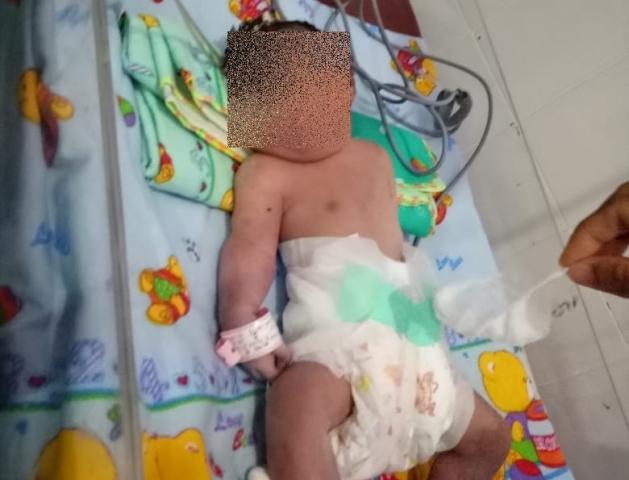 https: img.okeinfo.net content 2018 09 14 340 1950592 ibu-bayi-bermata-satu-di-mandailing-natal-menyadari-ada-kejanggalan-sebelum-melahirkan-A69sXAicoO.jpg