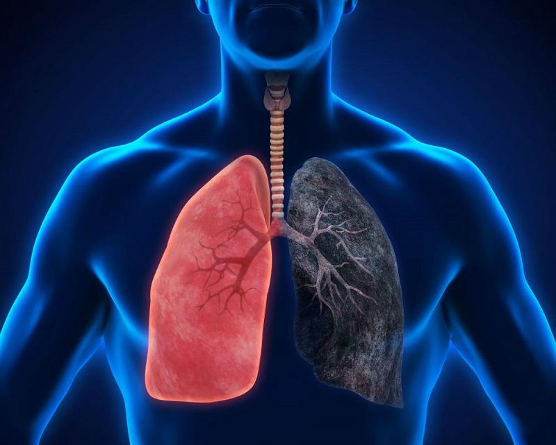 https: img.okeinfo.net content 2019 02 28 481 2024073 40-per-100-ribu-orang-di-indonesia-berisiko-kanker-paru-kenali-gejalanya-G0Yd6zBDPA.jpg