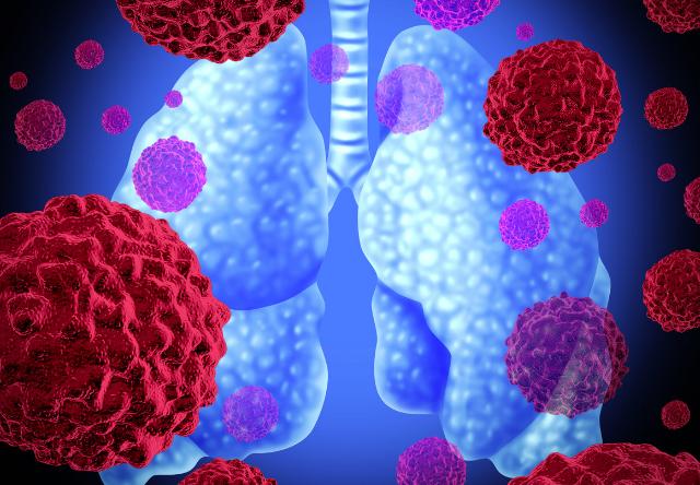 https: img.okeinfo.net content 2019 02 28 481 2024090 mengenal-imunoterapi-pengobatan-terbaru-bagi-pengidap-kanker-paru-paru-aqmfBVT5Ch.png