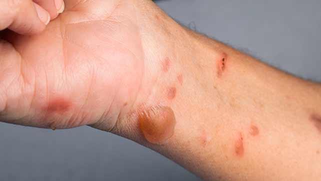 https: img.okeinfo.net content 2019 03 17 481 2031336 mitos-odol-mentega-bisa-sembuhkan-luka-bakar-faktanya-GN7OzakqVQ.jpg