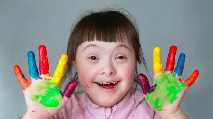 https: img.okeinfo.net content 2019 03 21 481 2033171 hari-down-syndrome-sedunia-pahami-perbedaannya-dengan-autis-DBgrEL4BCb.jpg
