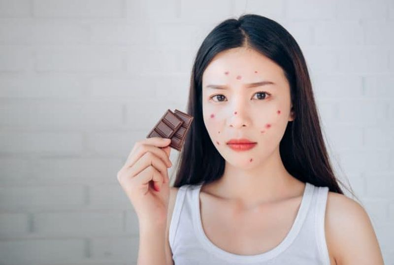 https: img.okeinfo.net content 2019 04 16 298 2044065 makan-cokelat-kebanyakan-bikin-jerawatan-kErTc0gx4v.jpg