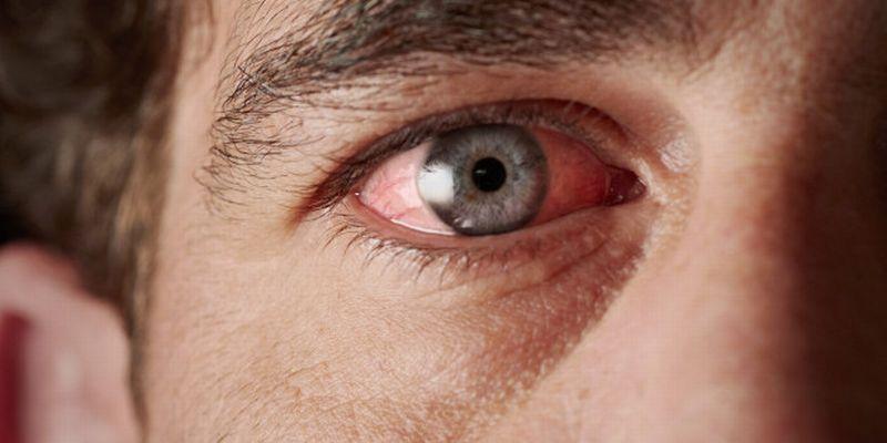 Gejala-gejala ini biasanya muncul 20-30 menit setelah terpapar gas air mata.