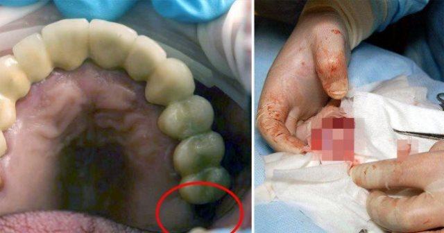 https: img.okeinfo.net content 2019 06 11 18 2065334 dokter-temukan-gigi-yang-hilang-tumbuh-di-testis-seorang-remaja-oIqbm2k4jh.jpg