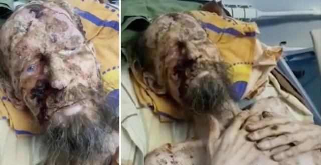 https: img.okeinfo.net content 2019 06 26 18 2071269 selamat-dari-serangan-beruang-pria-ini-terlihat-seperti-mumi-OqM8fbL1B7.jpg