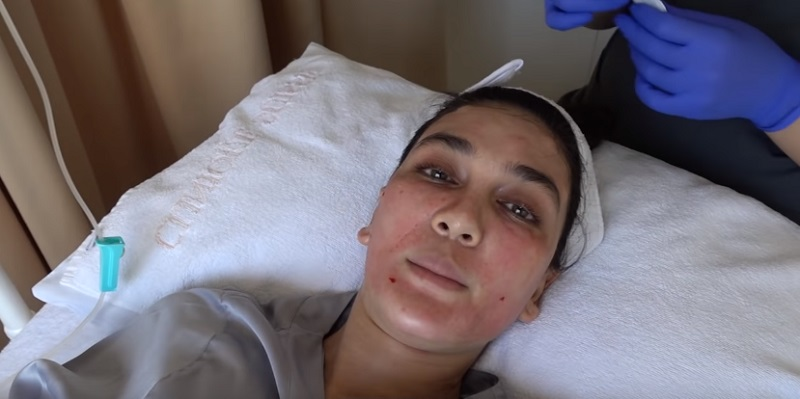 https: img.okeinfo.net content 2019 07 18 611 2080585 luna-maya-facial-darah-biar-kulitnya-cantik-dan-sehat-5bGzyNtGdK.jpg