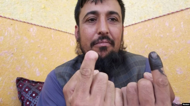 https: img.okeinfo.net content 2019 10 01 18 2111554 jari-dipotong-taliban-safiullah-safi-tak-kapok-ikut-pemilu-afghanistan-n67xXWWbft.jpg