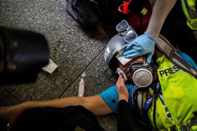 https: img.okeinfo.net content 2019 12 04 18 2137829 mata-kanan-buta-saat-liput-demonstrasi-wartawan-indonesia-tuntut-polisi-hong-kong-YvQpsyvsbI.JPG