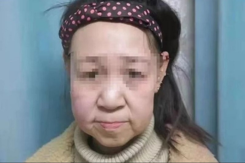 https: img.okeinfo.net content 2019 12 05 481 2138366 idap-penyakit-langka-remaja-15-tahun-ini-berwajah-mirip-nenek-nenek-yZ5Jd8WfUt.jpg