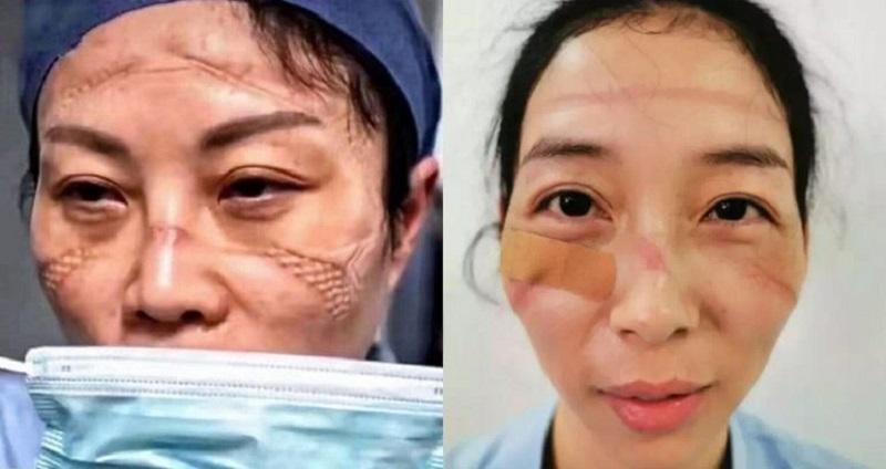 https: img.okeinfo.net content 2020 02 14 612 2168535 bekerja-seharian-begini-penampakan-wajah-suster-yang-rawat-pasien-covid-19-V1UhcbwwZU.jpg