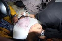 Polisi Kebut Berkas Kasus Kecelakaan Setya Novanto