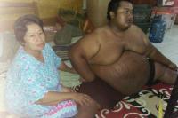 Penderita Obesitas di Karawang Meninggal Dunia, Ini Permintaan Terakhirnya ke Ibunda