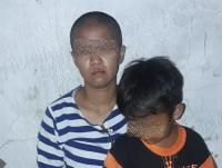 Keluarga Harap Polisi Segera Tangkap Mantan Majikan yang Diduga Aniaya dan Gunduli PRT